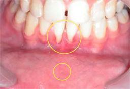 Terugtrekkend tandvlees [Foto: Levin L, Zadik Y. Am J Dent. 2007 Oct;20(5):340-4]