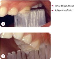 Als je de tanden in de lengterichting poetst, sla je de nieuwe blijvende kies die doorbreekt over (foto 1). Juist de nieuwe kiezen zijn extra kwetsbaar. Zet de tandenborstel daar dwars op de tandenrij (foto 2)