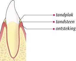 Ontstoken tandvlees (gingivitis)