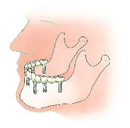 Een brug op zes implantaten