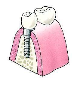 7. De kroon is op het implantaat geplaatst