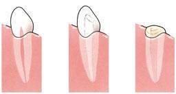 Het wortelkanaal van de tand (l) wordt voorbehandeld (m), de tand wordt afgeslepen en gevuld (r)