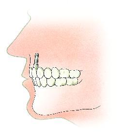 Een tand is vervangen door een implantaat en een kroon