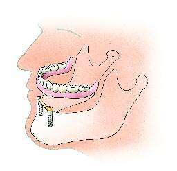 Twee met elkaar verbonden implantaten dienen als verankering voor de overkappingsprothese