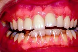 verkleuring-door-stoornissen-tandkiem