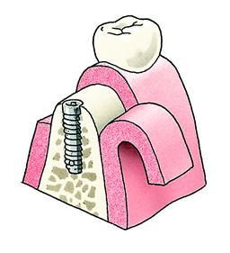 4. Het implantaat wordt aangebracht