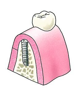 5. Het tandvlees wordt gehecht