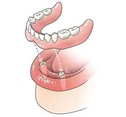Enkele wortels van uw tanden of kiezen worden als pijlers gebruikt