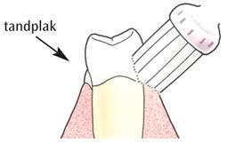 Zet de tandenborstel schuin op het tandvlees
