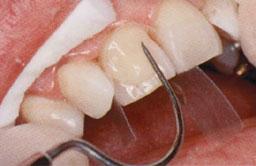 De tandarts brengt de composiet op het oppervlak globaal in vorm