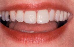 De facing van composiet heeft zowel de kleur als de stand van de tanden verbeterd