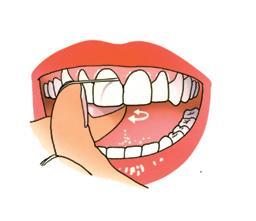 Trek de draad strak om de tand of kies