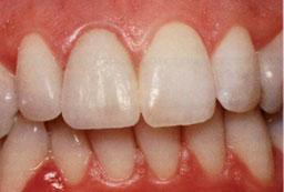 Op de tand is een porseleinen facing geplaatst