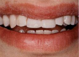 Nog dezelfde dag zijn de tanden met composiet hersteld