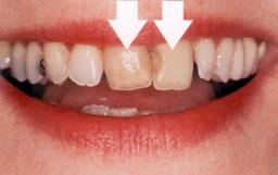 De tanden zijn verkleurd en staan niet mooi op een rij