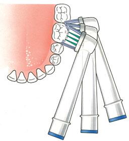 volg de vorm van uw tanden en kiezen